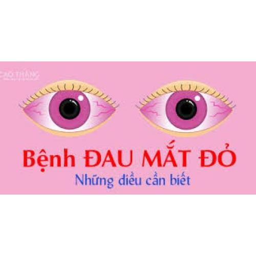Tuyên truyền phòng chống bệnh đau mắt đỏ